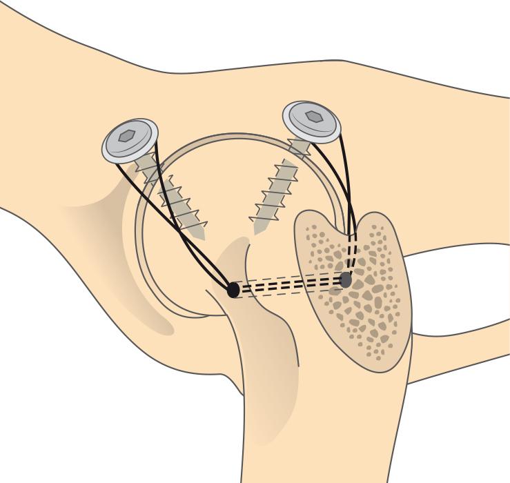Резекция тазобедренного сустава что это блуждающая боль в суставах и низ живота затрудненное мочеиспус
