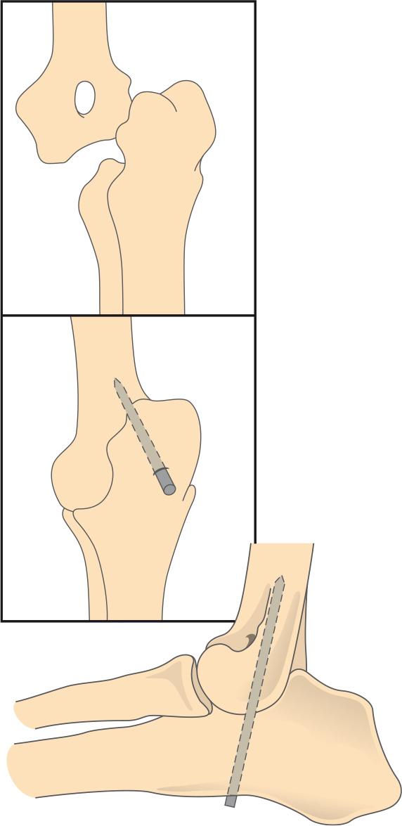 Врожденный вывих локтевого сустава у щен диагностика деформирующего переартрита лучезапястного сустава